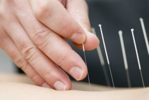 Acupuncture with physiotherapy after surgery
